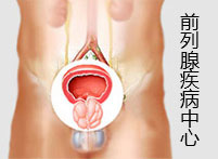 前列腺疾病中心